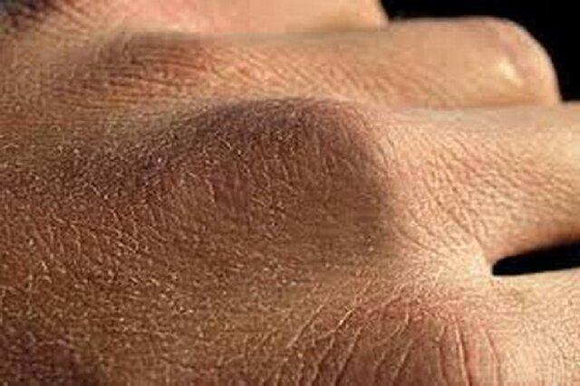 استفاده از صابون های حاوی گلیسیرین برای پیشگیری از اگزما و خشکی پوست